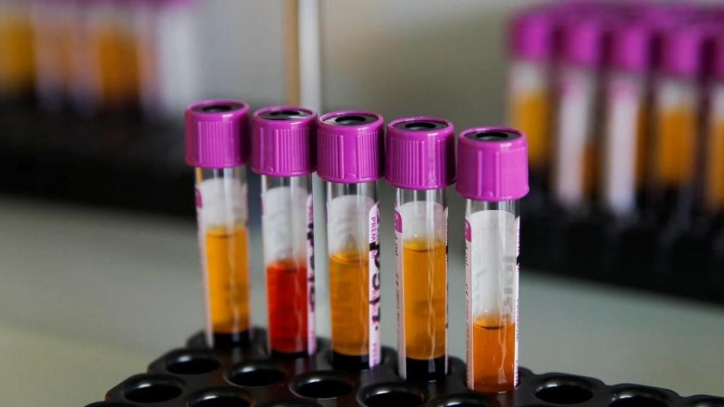 В России зарегистрирован тест на антитела к коронавирусу